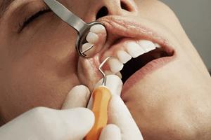 wat verdient een tandarts? Check het tandarts salaris en vergoeding in loondienst
